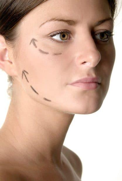 הרמת פנים ללא ניתוח